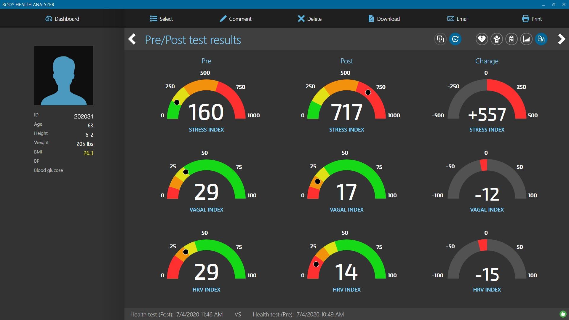 Body Health Analyzer Pre-Post Hill Climb Bike Report